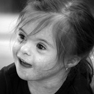 Photo of a girl with Down syndrome